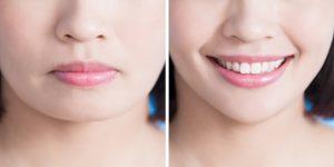 jawbone plastic surgery